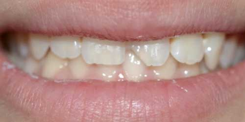 Before / After Photos | Palms Dental in Plantation